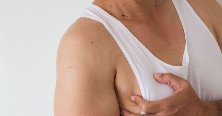 Symptoms Of Gynecomastia